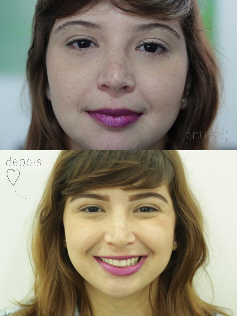 sobrancelhas design antes e depois laris